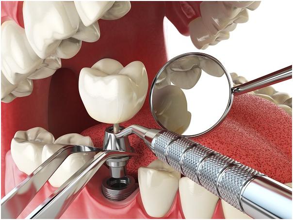 Alternative Options to a Dental Implant